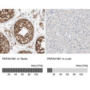 Anti-PAFAH1B1 antibody produced in rabbit
