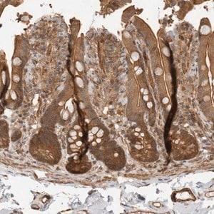 Anti-ERN1 antibody produced in rabbit