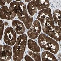 Anti-GJB1 antibody produced in rabbit