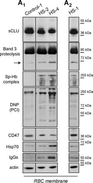 Anti-Human IgG (whole molecule)−Peroxidase antibody produced in rabbit