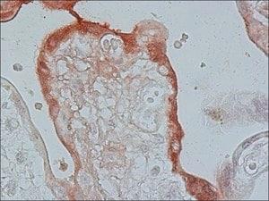 Anti-Fibroblast Growth Factor Receptor-3, Cytoplasmic antibody produced in  rabbit affinity isolated antibody, buffered aqueous