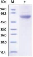 EPOR/Erythropoietin Receptor human