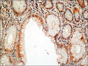 Anti-Adrenomedullin antibody produced in rabbit