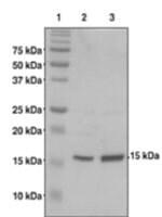 Histone H2B (1-123) from Xanopus> sp.
