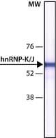 Monoclonal Anti hnRNP K J antibody
