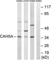 Anti-CA5A antibody produced in rabbit