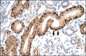 Anti-NR5A1 antibody produced in rabbit
