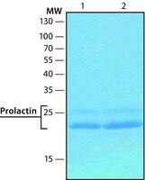 Prolactin human