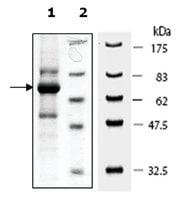 PDGFRb active human